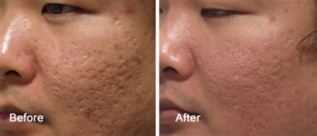 Acne Scar Removal Doctor Los Angeles and Beverly Hills at