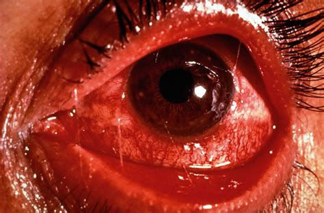 Community Eye Health Journal » The red eye – first aid at