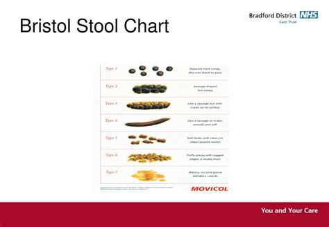 PPT - ANATOMY & PHYSIOLOGY OF THE BOWEL Gill Nottidge