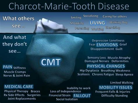 Charcot marie tooth   Teeth diseases, Muscle atrophy, Cmt