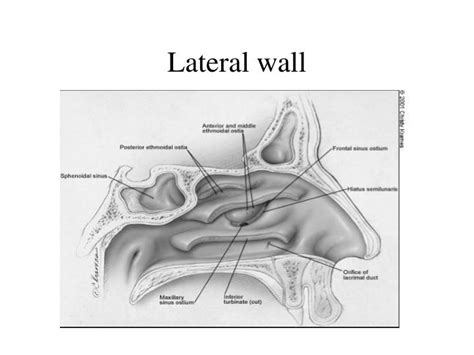 PPT - Nasal cavity & Post nasal space PowerPoint