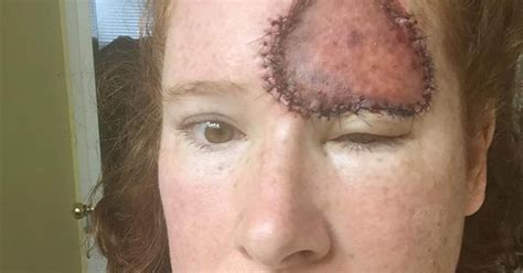 Symptoms of skin cancer: Woman's melanoma looked like