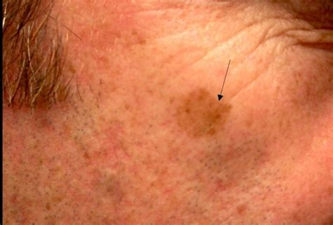 Melanoma on Face Pictures – 22 Photos & Images / illnessee