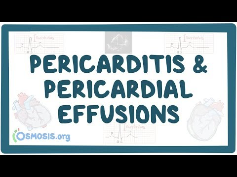 Constrictive Pericarditis Associated with Atypical