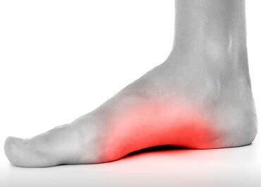 Foot Arch Pain: Causes & Treatment - Foot Pain Explored