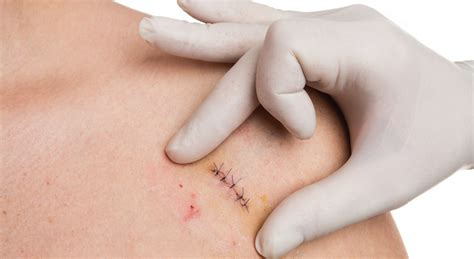 Skin Biopsy Market to Witness a Pronounce Growth Rate ~9