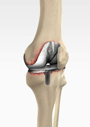 Knee Treatment Melbourne   Robotic Assisted Partial Knee
