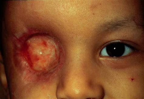 Retinoblastoma - Repercussions and Treatments of this Eye