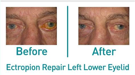Plastic Surgery Danbury CT | Before & After Gallery